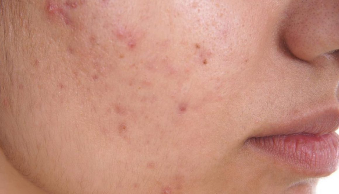 What are the best vitamins and minerals for treating acne?